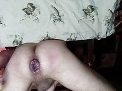 anal prolapse