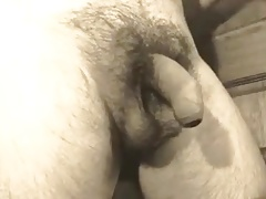 Foreskin being retracted