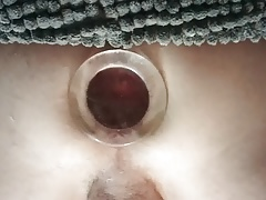 The plug, the gape, and the prolapse